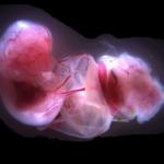 Fetus Placenta